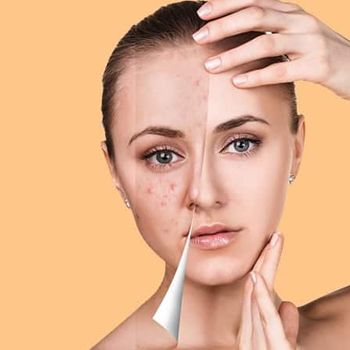 what-salicylic-acid-does-with-your-skin-ukr